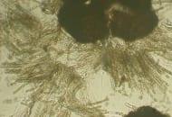 Fot. 1. Wypełniony zarodnikami owocnik grzyba Venturia inaequalis